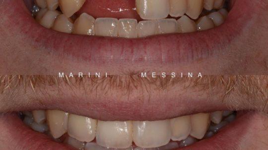 Impianto dentale si o no?
