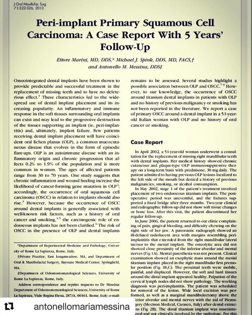 Peri-implant Primary Squamous Cell Carcinoma: A Case Report With 5 Years' Follow-Up. Marini E, Spink MJ, Messina AM.    Journal of Oral & Maxillofacial Surgery