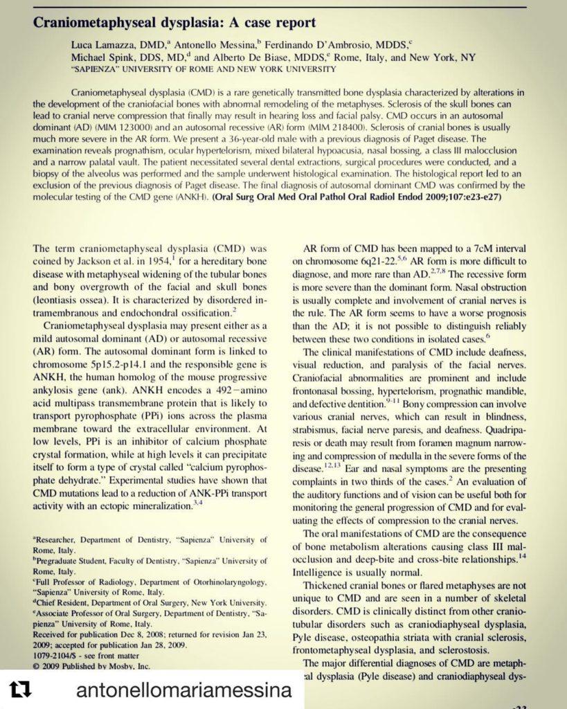 Craniometaphyseal dysplasia: a case report
